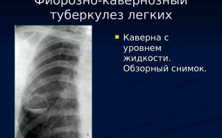 Фиброзно-кавернозный туберкулез легких: лечение и прогноз