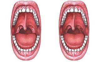 Фарингит после удаления миндалин: причины, способы лечения