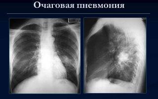 Нижнедолевая пневмония: правосторонняя и левосторонняя