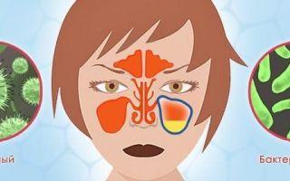Вирусный гайморит: этиология заболевания, его симптомы