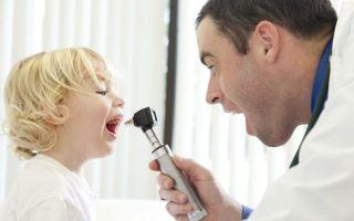 Кашель при аденоидах у детей, взрослых: лечение
