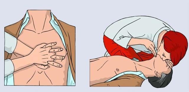 Как правильно делать искусственное дыхание рот в рот?
