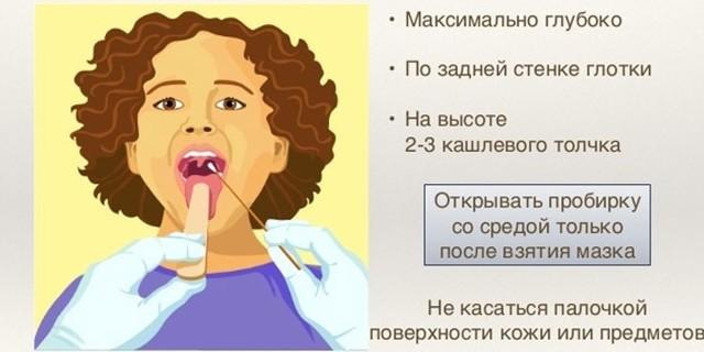 Мазок из горла: что показывает, подготовка к исследованию