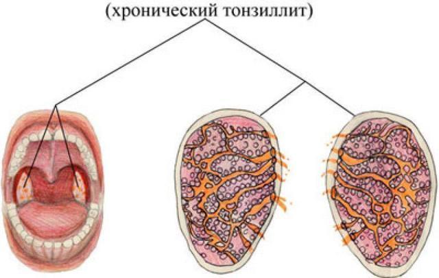 Сколько раз в жизни болеют скарлатиной?