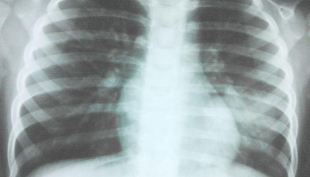 Пятна на легких при рентгене: виды и причины