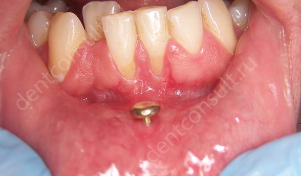 Швейцарские стоматологи: пирсинг языка разрушает десна