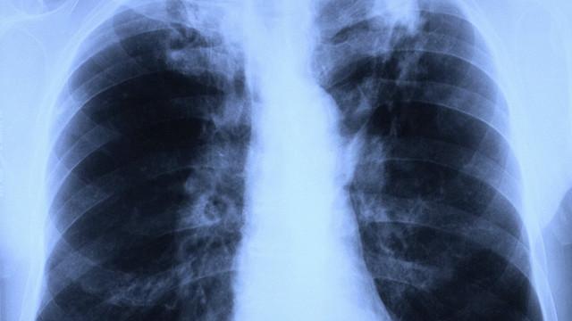 Ученые нашли новые методы лечения туберкулёза