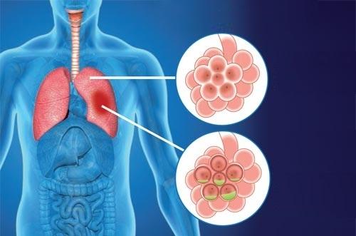 Какой бывает кашель при пневмонии: что важно знать?