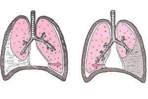 Гидроторакс легких: причины появления, симптомы, методы лечения