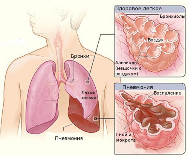Воспаление легких: как проявляется у взрослых и детей