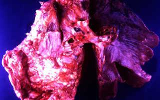 Карциноид легкого: виды, диагностика и продолжительность жизни