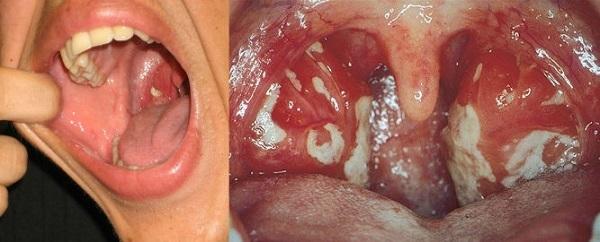Стрептококковый фарингит у детей и взрослых: симптомы, лечение