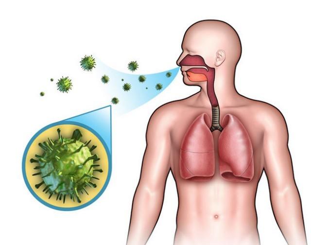 Заразна ли пневмония для окружающих: пути передачи и вероятность заболеть