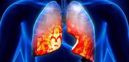 Аускультация при пневмонии у взрослых и детей: что это такое?