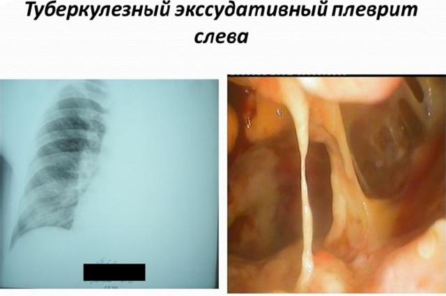 Туберкулезный плеврит: заразен или нет, симптомы, лечение