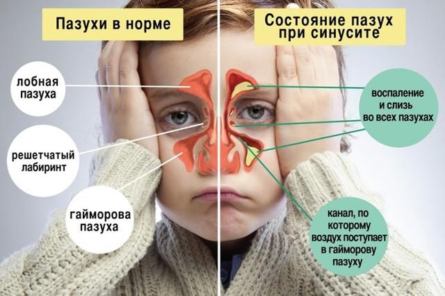 Антибиотики при синусите у взрослых, детей: список препаратов