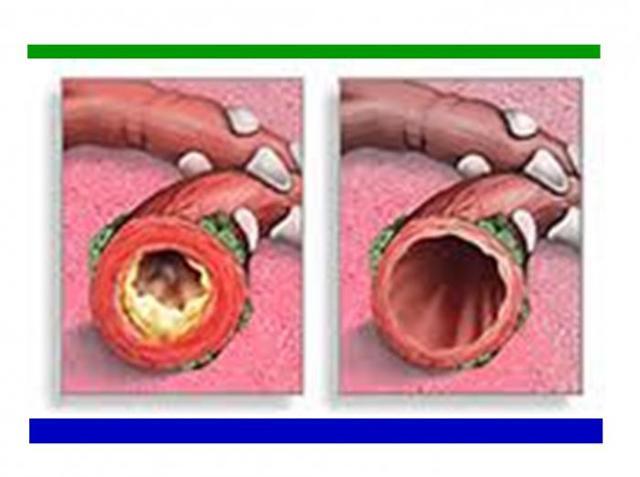 Обострение ХОБЛ: симптомы, особенности лечения