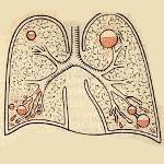 Гангрена легкого: симптомы, диагностика и способы лечения