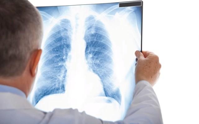 Операция при туберкулезе легких: инвалидность при туберкулезе легких после операции