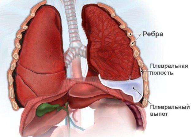 Жидкость в легких при онкологии: лечение, прогноз