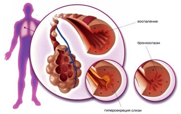 Симптомы хронической бронхиальной астмы и способы её лечения
