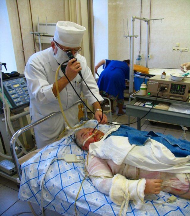 Бронхоскопия легких: что это такое, как проводится и для чего