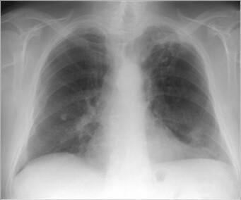 Бронхит на рентгеновском снимке: виды и как отличить