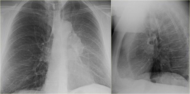 Ателектаз легкого: признаки, причины и что покажет рентген?