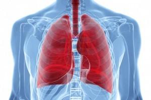 Лимфома легких: симптомы, диагностика, лечение