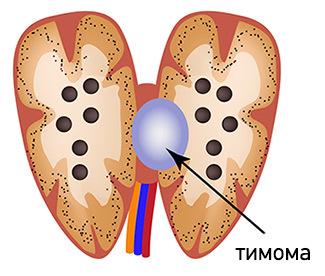 Тимома средостения: симптомы, диагностика, лечение и прогноз