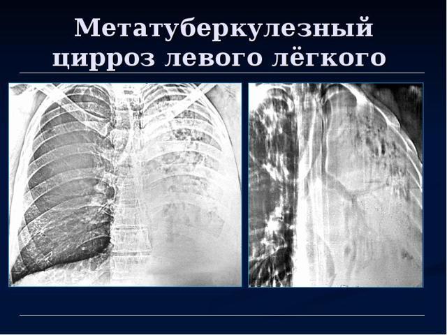 Метатуберкулезные изменения в легких: что это такое