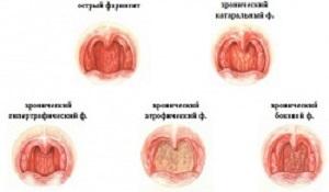 Хронический фарингит у детей и взрослых: симптомы и лечение