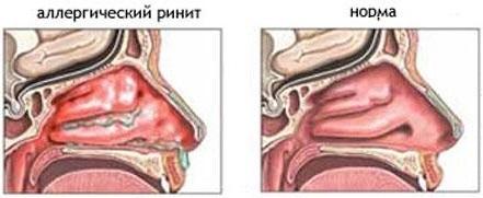 Инфекционный ринит (острый, хронический): симптомы, лечение