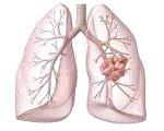 Кандидоз легких: что это такое, симптомы и способы лечения