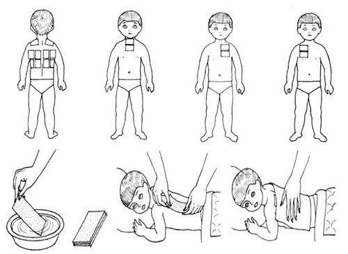 Признаки бронхита у детей: симптоматика острой и обструктивной форм