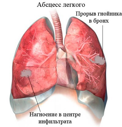 Абсцесс легкого: причины, симптомы, диагностика, способы лечения