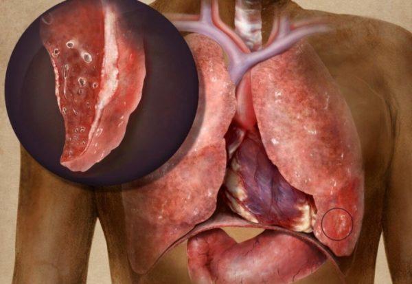 Туберкулез: опасность заболевания, способы лечения