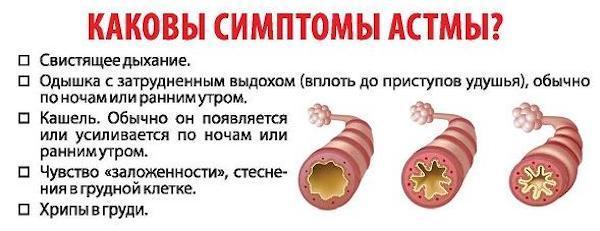 Бронхиальная астма у взрослых и детей - первые симптомы