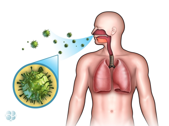 Бактериальный бронхит: симптомы, лечение и профилактика