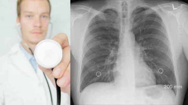 Ингаляция при пневмонии: рекомендации специалистов
