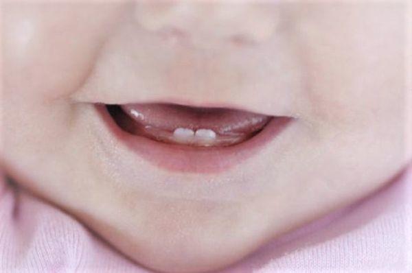 Кашель при прорезывании зубов: причины возникновения и лечение