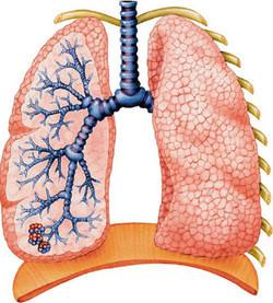 Пневмония у взрослых: симптомы, диагностика, лечение