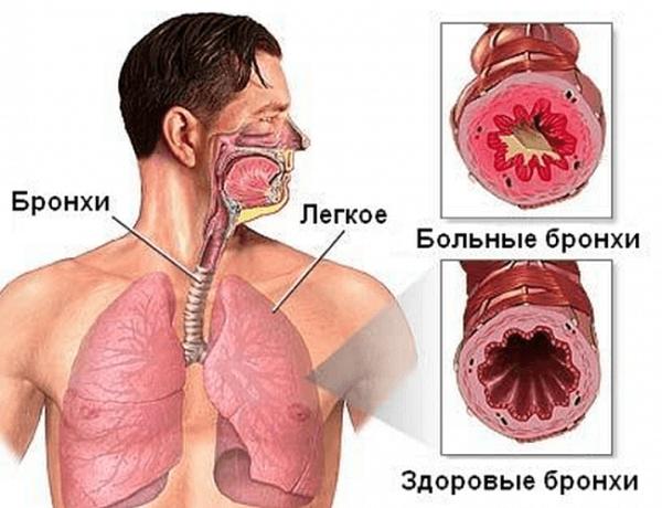 Бронхит и пневмония: отличия и сходство заболеваний