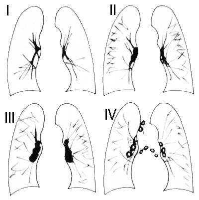 Пневмокониоз легких: симптомы, диагностика, лечение