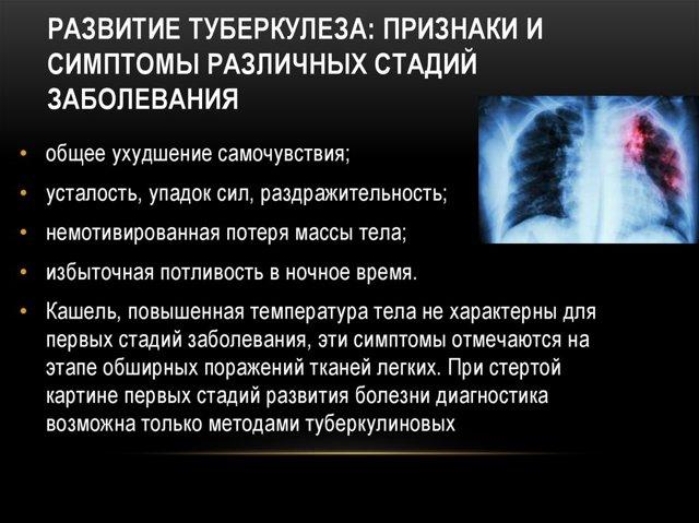 Распад легких при туберкулезе: сколько осталось жить, особенности