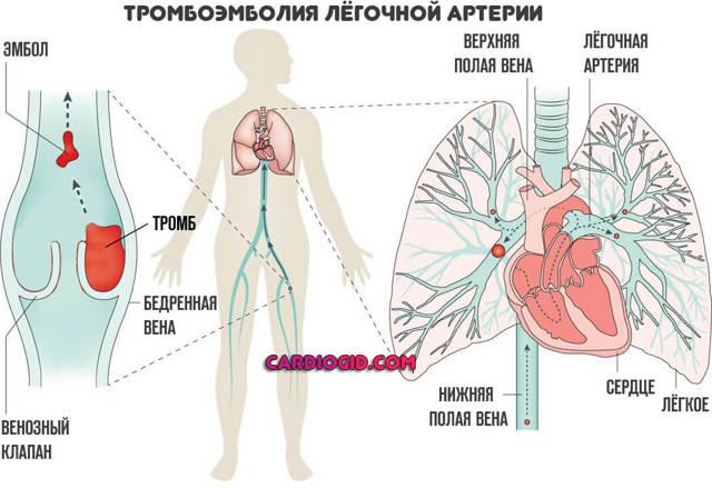 Тромбоэмболия легочной артерии: причины, симптомы, диагностика
