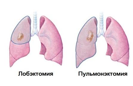 Как лечат туберкулез в стационаре: химиотерапия и хирургия