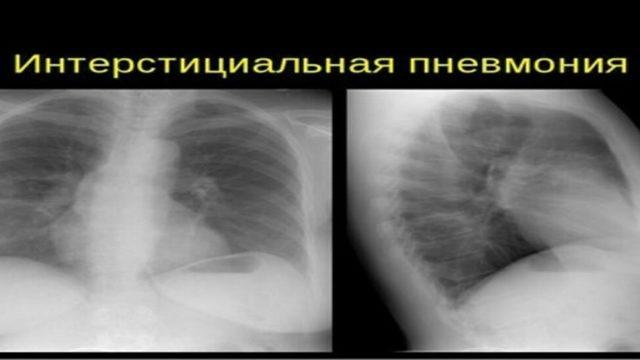 Интерстициальная пневмония: этиология, формы, симптомы, лечение