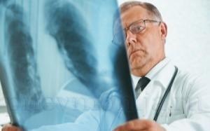 Лечение хронического трахеобронхита у взрослых