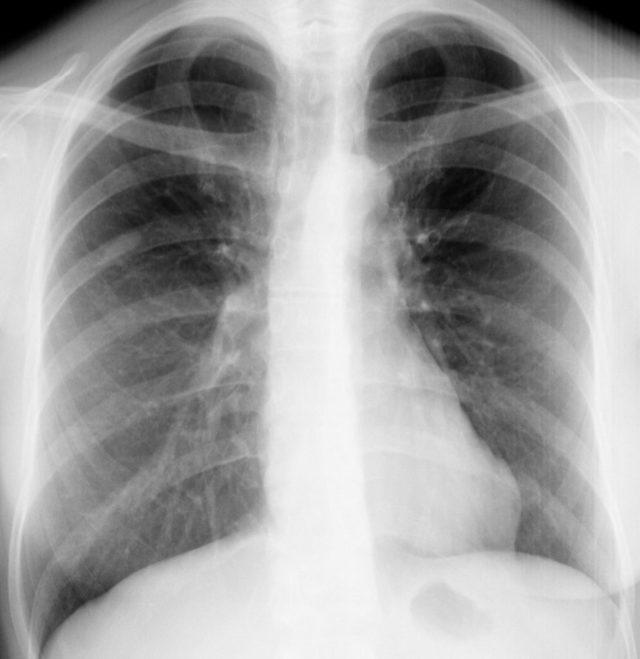 Микобактериоз легких: симптомы, диагностика и лечение